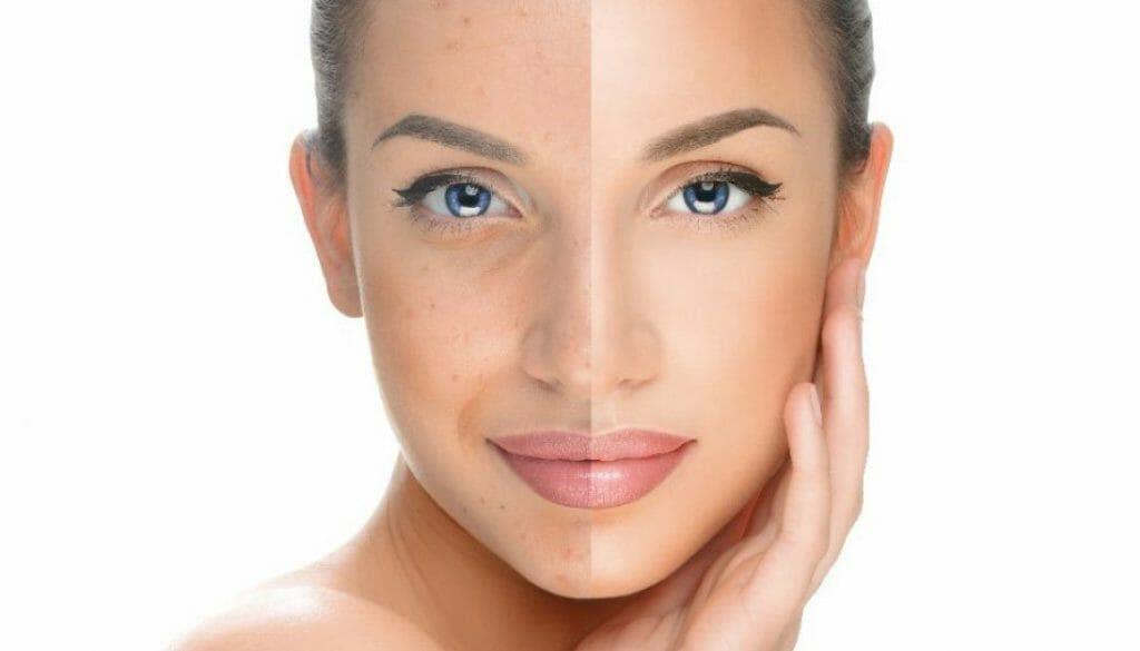 Best Acne Scar Treatments through Banisher 2.0